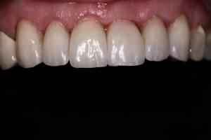 Zahnheilkunde Dr. Joachim Schick, Metzingen – Zahnsleeves
