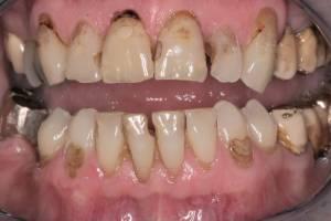 Zahnheilkunde Dr. Joachim Schick, Metzingen – Zahnerhaltung - Reinigung