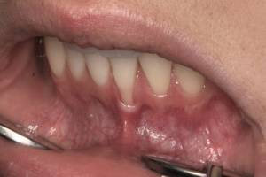 Zahnheilkunde Dr. Joachim Schick, Metzingen – Parodontose Behandlung
