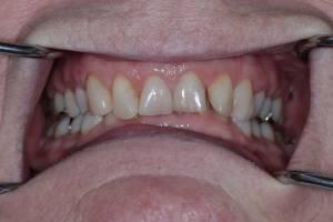 Zahnheilkunde Dr. Joachim Schick, Metzingen – Zahnästhetik